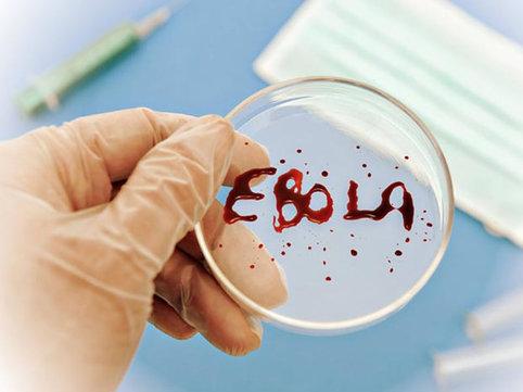 Rusiya Ebola əleyhinə peyvənd istehsalına başladı